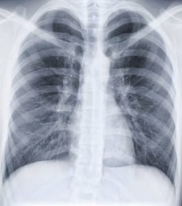 Radiographie des poumons
